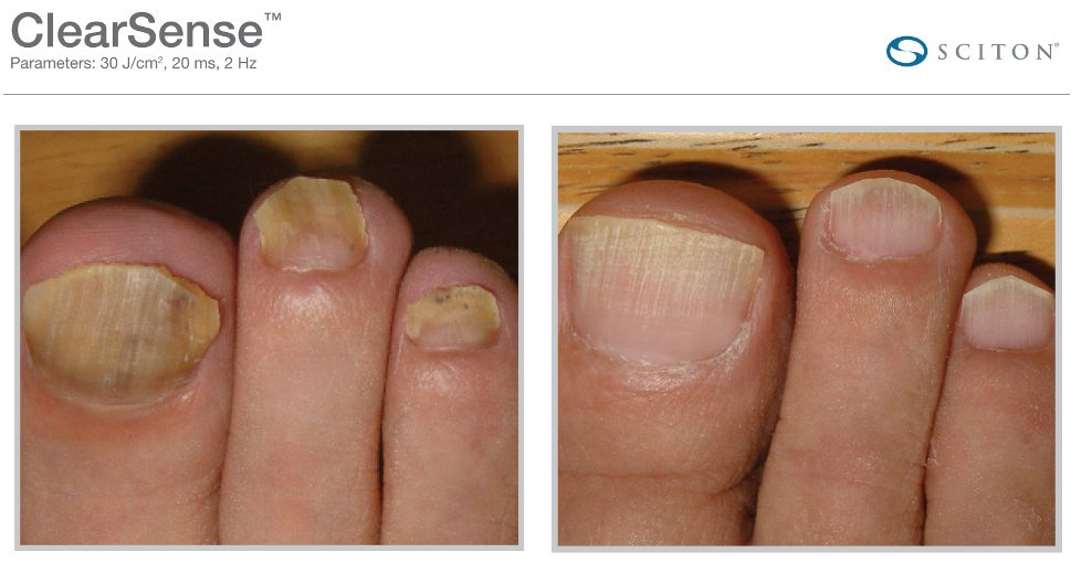 Sciton laser Toe Fungus Treatment
