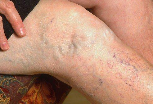 vein treatment Great Skin Ohio - Columbus, Beavercreek, Mansfield Ohio