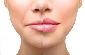 Lip Fillers - Celebrity Lips - Plump Lips