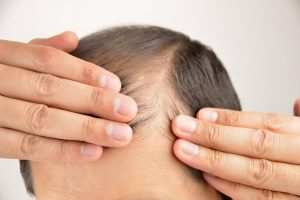 NeoGraft Hair Restoration