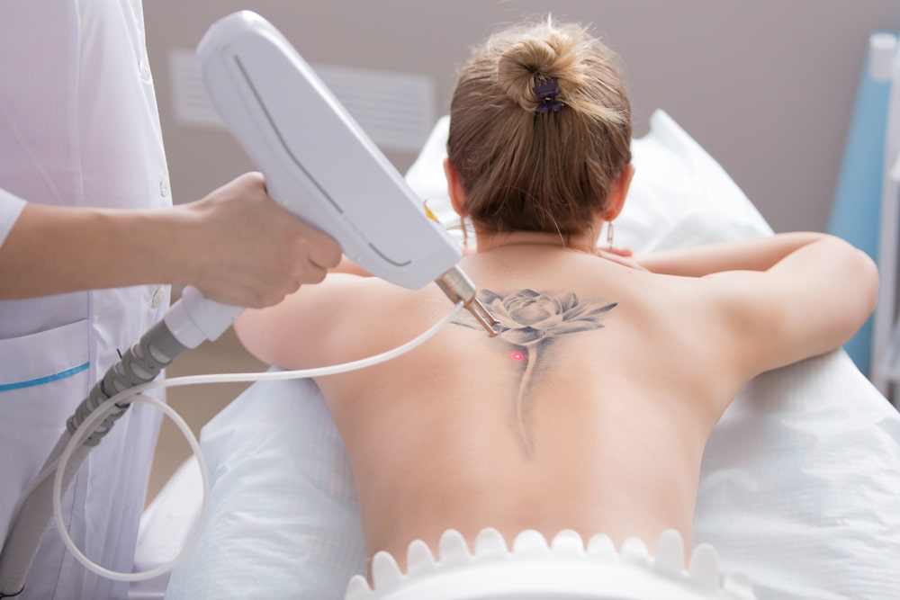 What Do You Need to Know about Tattoo Removal?