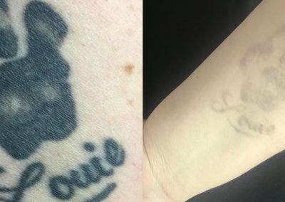 tattoo18-1