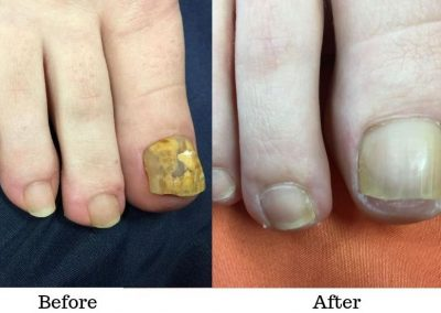 Toe Fungus Removal