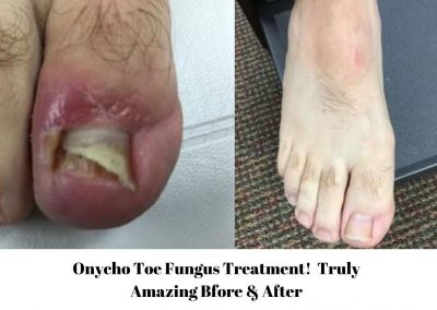 Onycho Toe Fungus Treatment 1