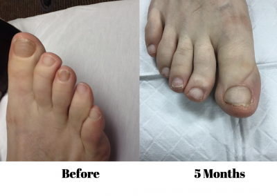 Onycho Toe Fungus Treatment 3