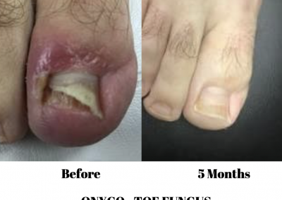 Onycho Toe Fungus Treatment 4