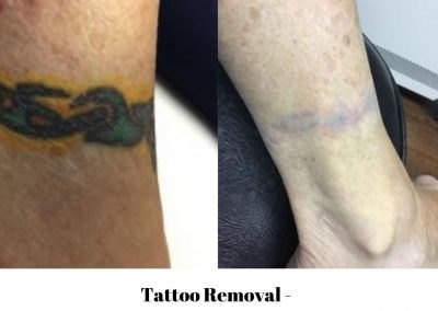 Tattoo Removal 5