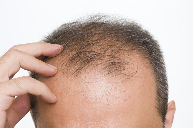 All About Hair Loss: Comparing Six Innovative Treatments That Really Work