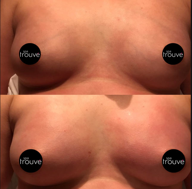 Vampire Breast Lift - Before After - 2