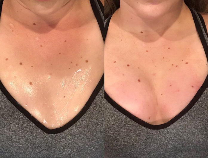 Vampire Breast Lift - Before After - 3