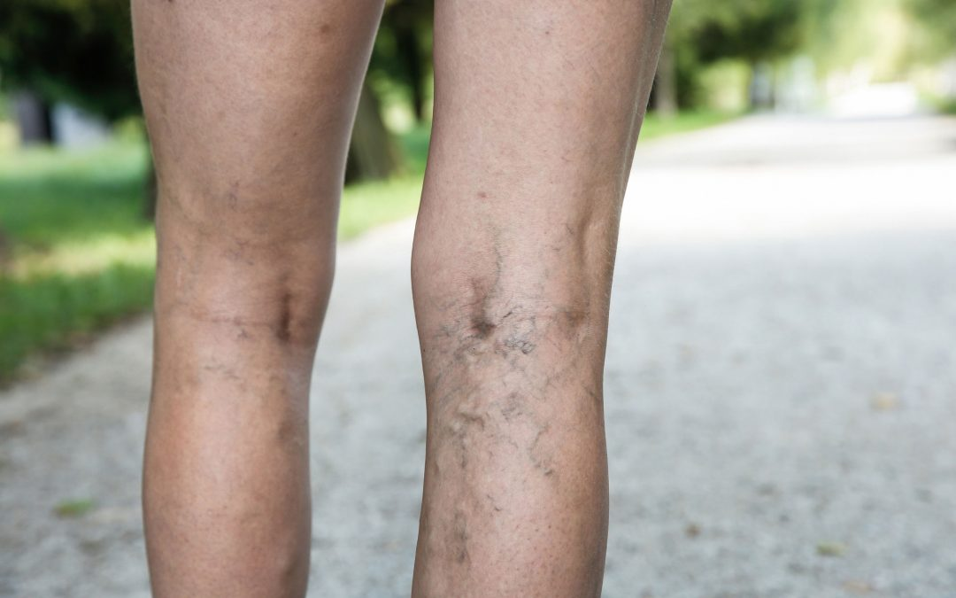 Venous Insufficiency 101: Top Treatments For Varicose Veins, Port Wine Stains, Rosacea & More