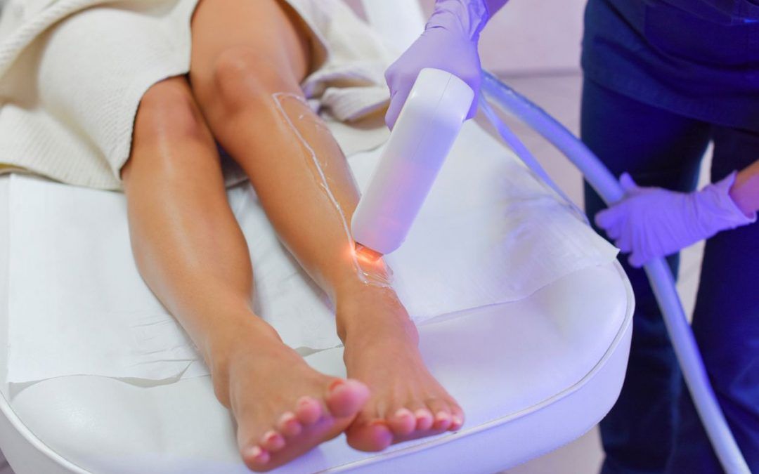 Laser Hair Removal: Answering 7 Questions About America's #1 Most Popular Aesthetic Procedure